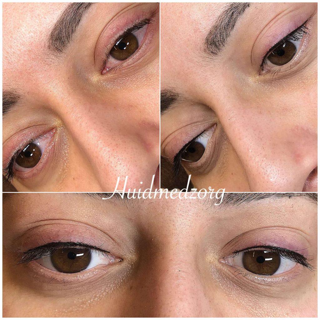 Permanent Make-up Eyeliner boven Wassenaar | Huidmedzorg