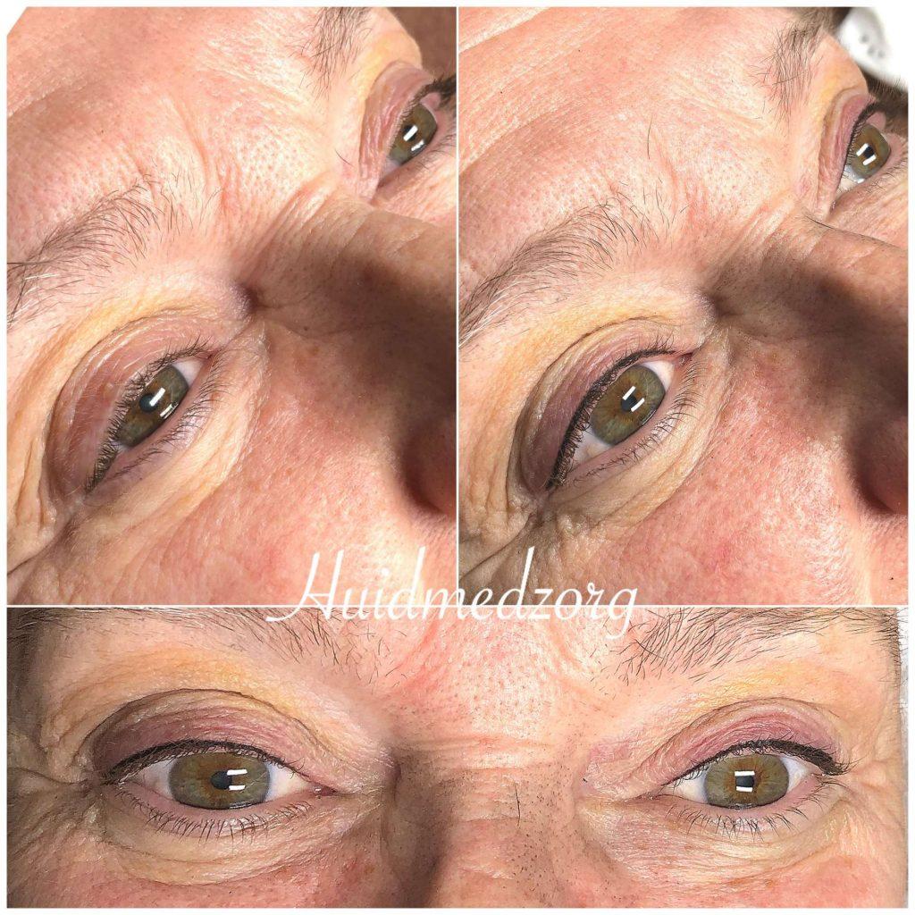 Tatoeage Eyeliner boven Wassenaar | Huidmedzorg